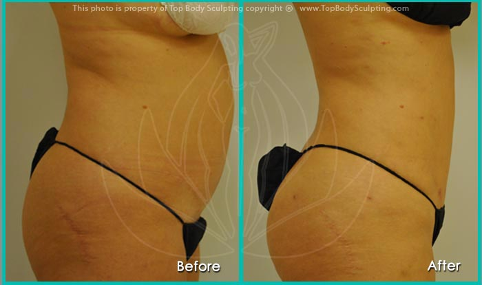 Liposculpture vs Liposuction weston florida